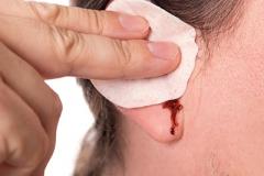 BLEEDINGFROM-EAR