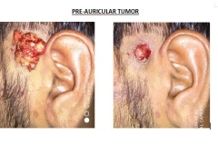 Pre-Auricular Tumor