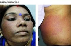 Allergy / Skin eruptions
