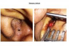 Tragal Sinus