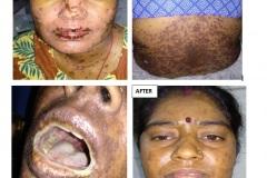 Toxic epidermal necrolysis / Steven Johnson's syndrome